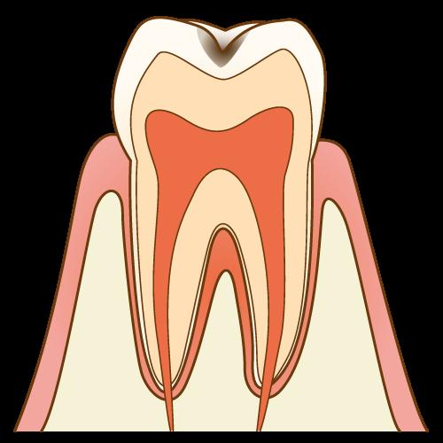 エナメル質内の初期虫歯