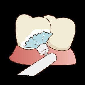 歯面清掃・フッ素塗布