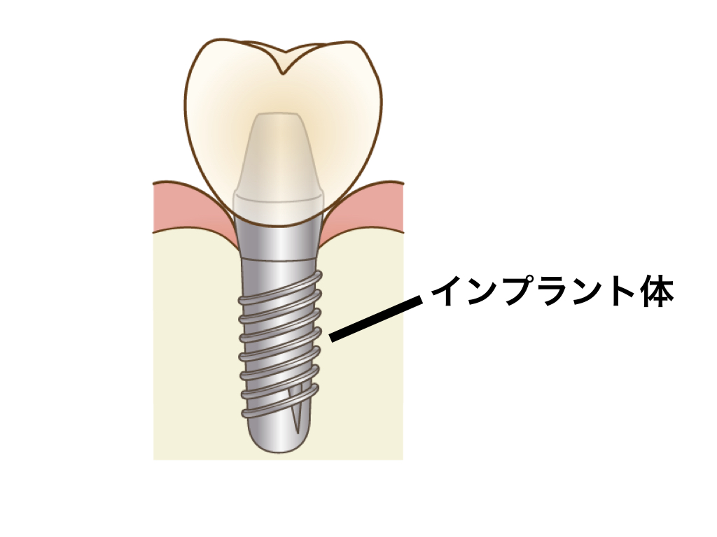 インプラント体