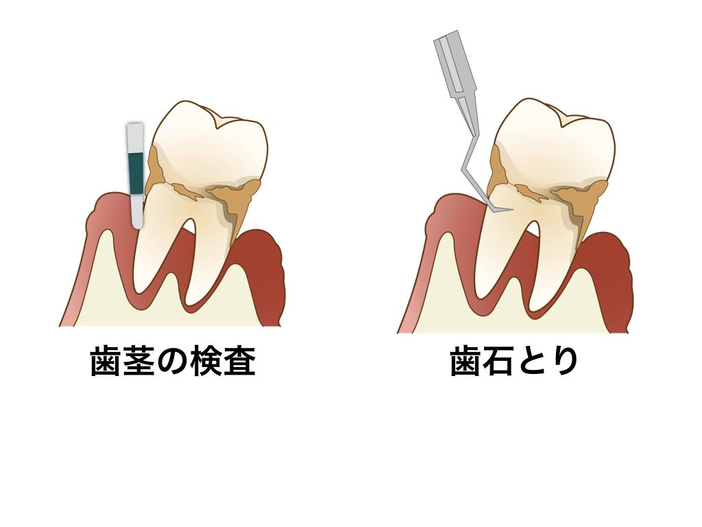 歯茎の検査と歯石とり