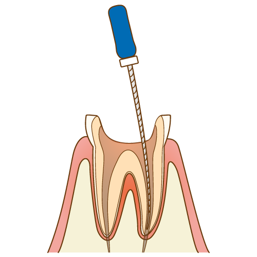 根管治療、神経の治療