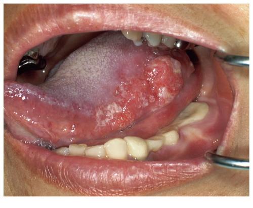 口腔がん舌がん