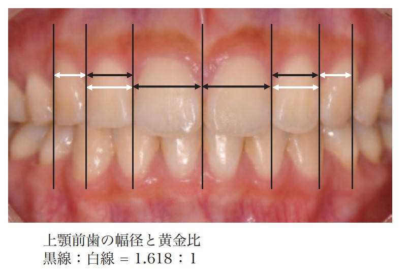 上顎前歯の幅径と黄金比