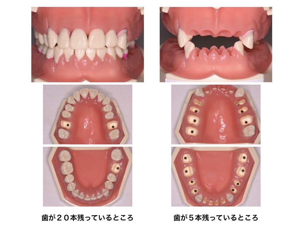 歯が20本残っているところと歯が5本残っているところ