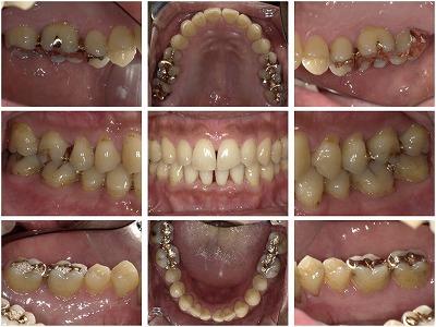 歯周治療(現状の把握)