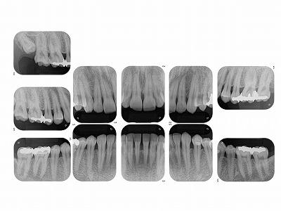 歯周検査レントゲン