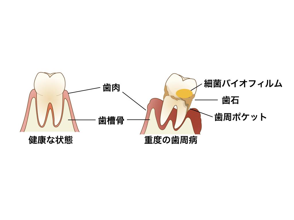 健康な状態と重度の歯周病