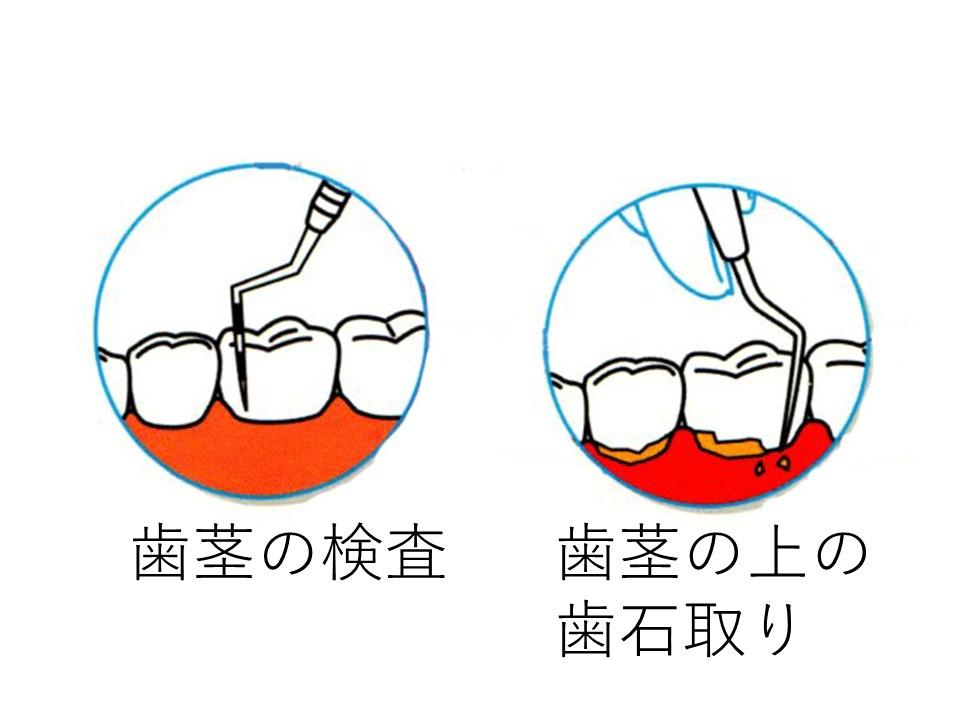 歯茎の検査と歯茎の上の歯石取り