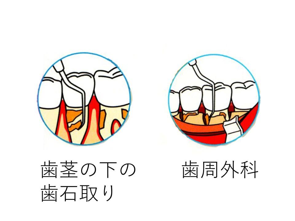歯茎の下の歯石取りと歯周外科