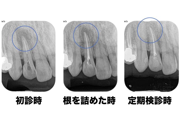 感染根管処置1