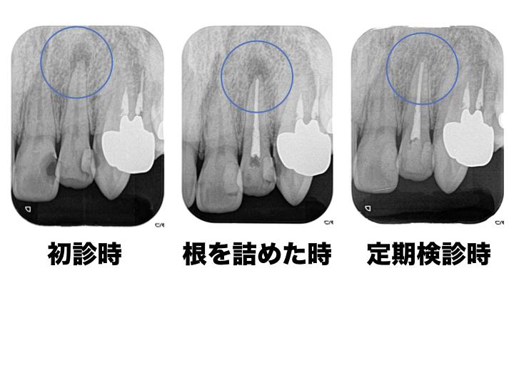 感染根管処置1.5