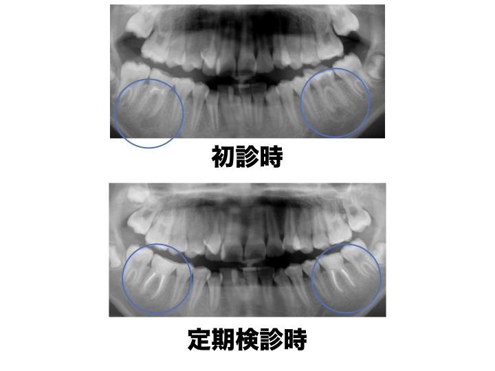 感染根管処置2
