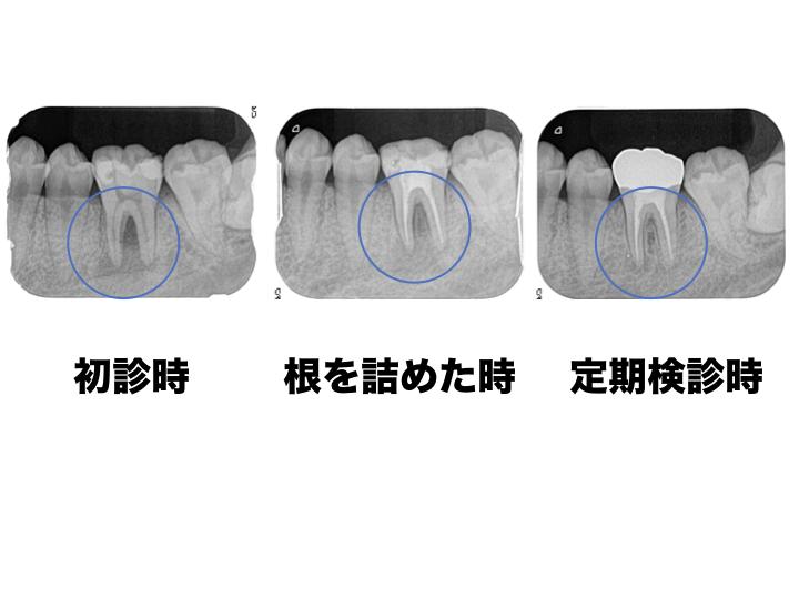 真ん中の歯の保存が難しい状態と親知らずを移植と術後5年