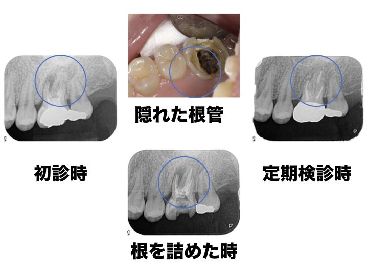 感染根管処置4