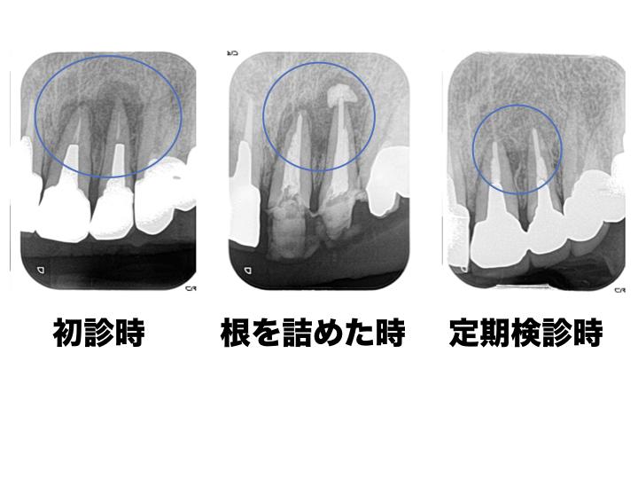 感染根管処置+外科的歯内療法