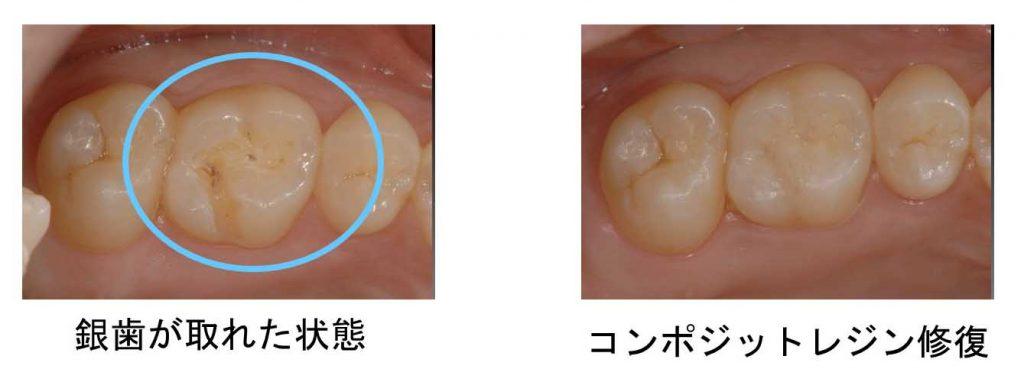 銀歯が取れた状態とコンポジットレジン修復