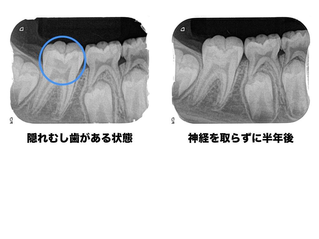 隠れむし歯がある状態と神経を取らずに半年後